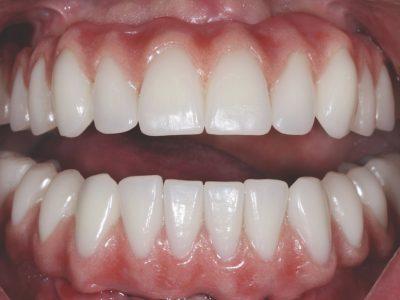 after-teeth-ric